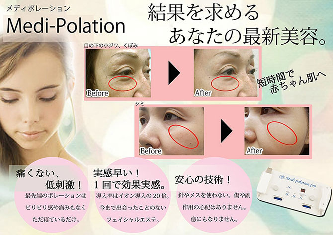 polation-large